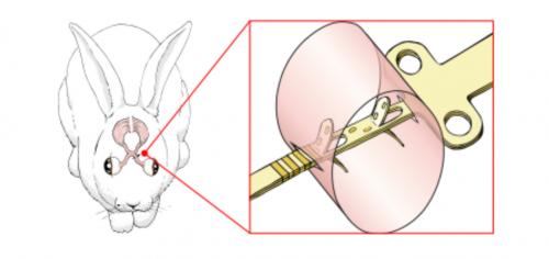 eletrodos-intraneurais